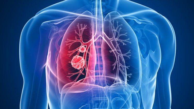 Asbestos Kills More Than We thought